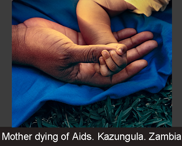 Mother dying of Aids. Kazungula. Zambia - op maat